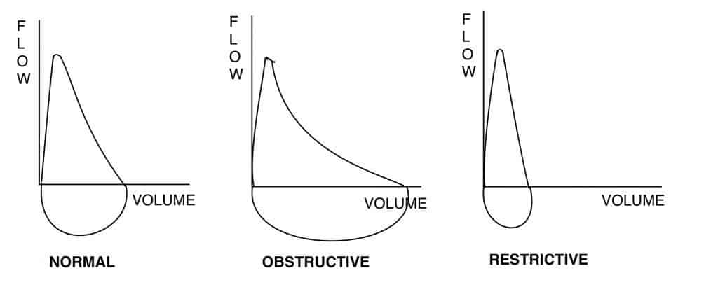 These examples of flow volume loops reveal the presence of obstructive and restrictive lung diseases.