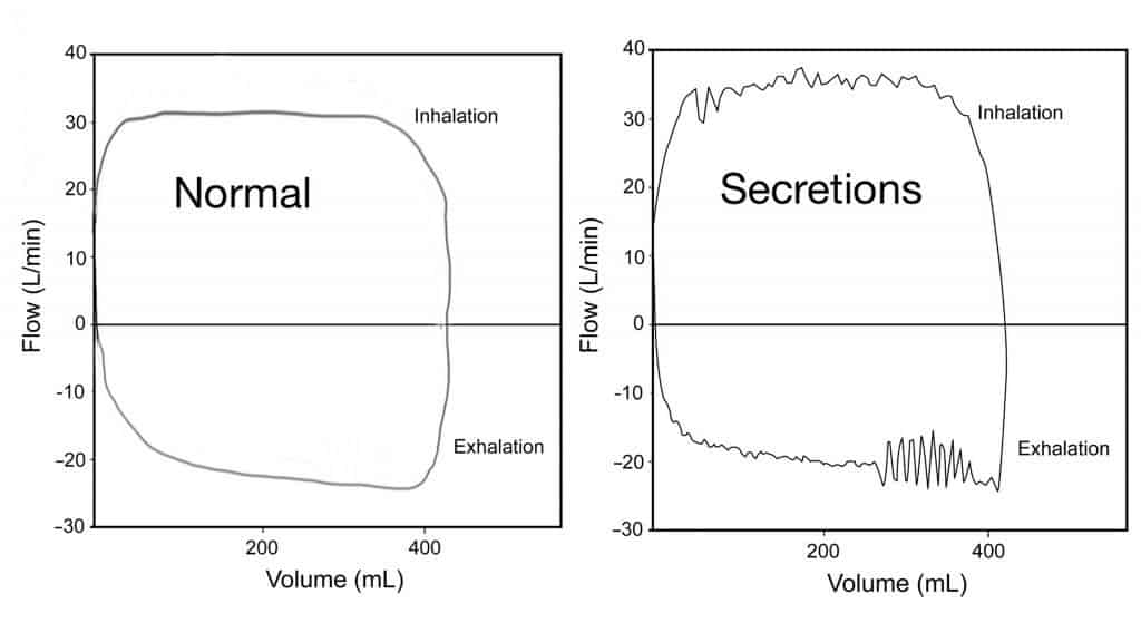 Secretions in the airway during mechanical ventilation
