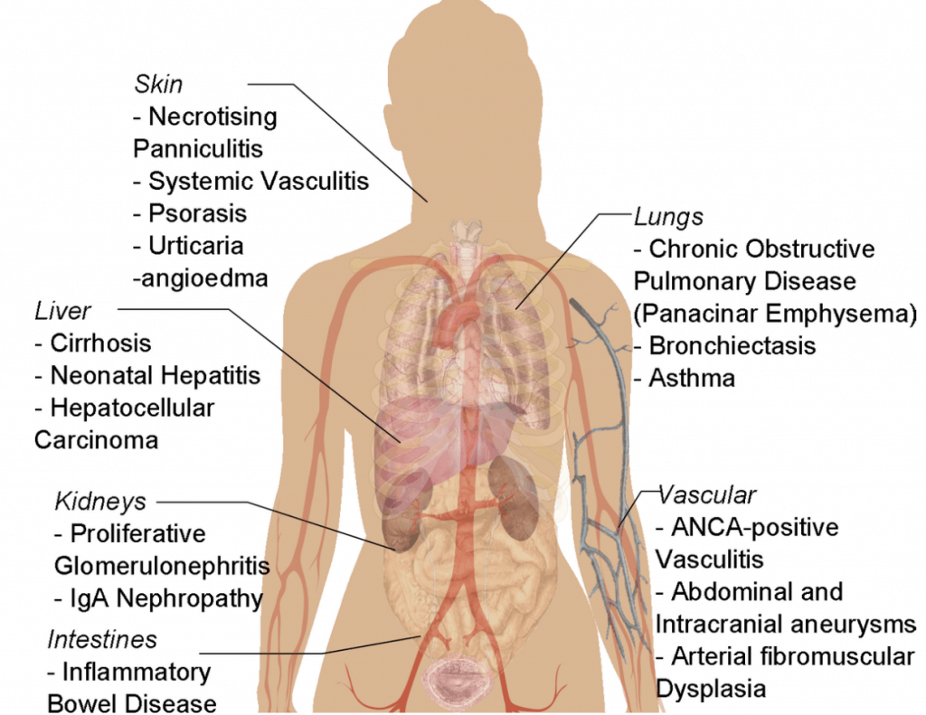 Picture of the organs systems affected by alpha-1 deficiency