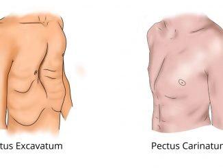 Pectus carinatum and excavatum