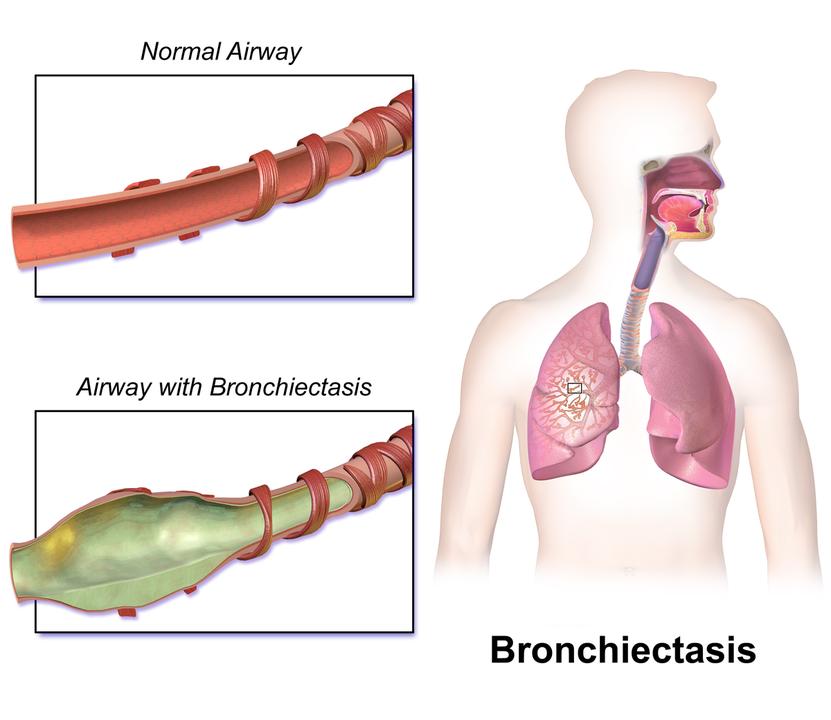 831px-Bronchiectasis