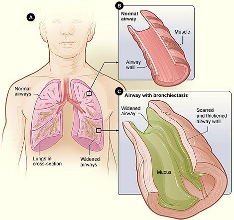 Picture of airway thickening due to the lung disease bronchiectasis